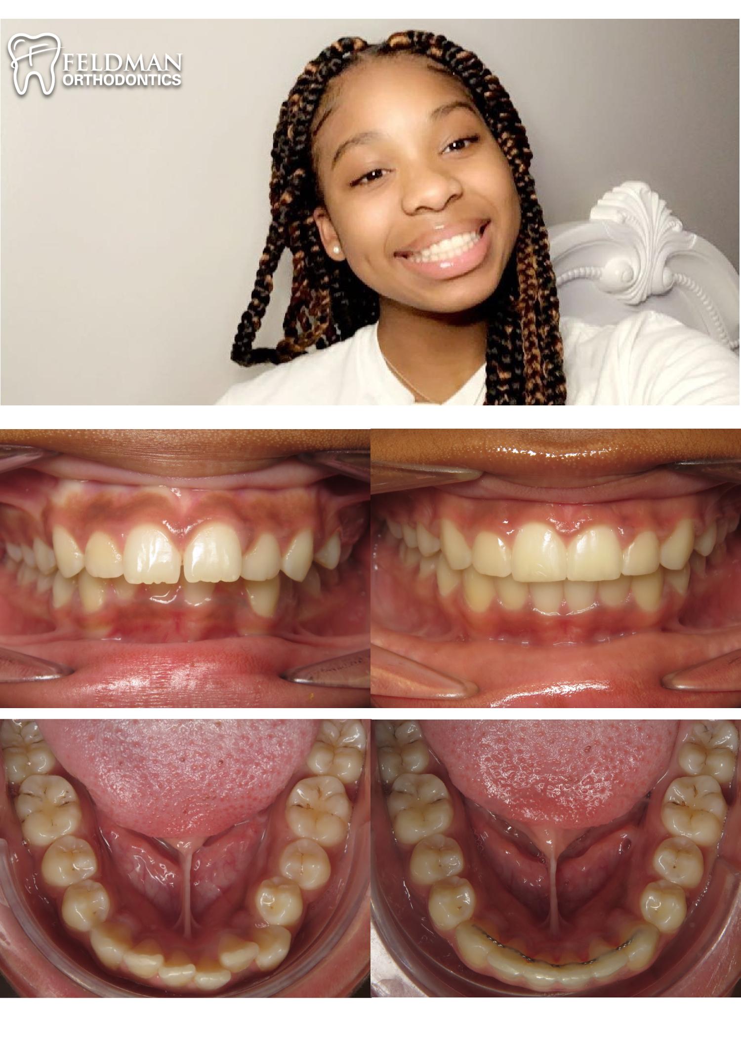 Jada Hughes collage